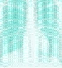 X-Ray_460X525