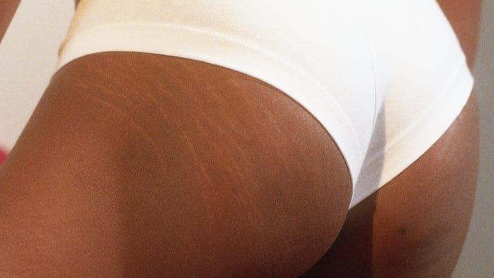 Pooping during anal sex