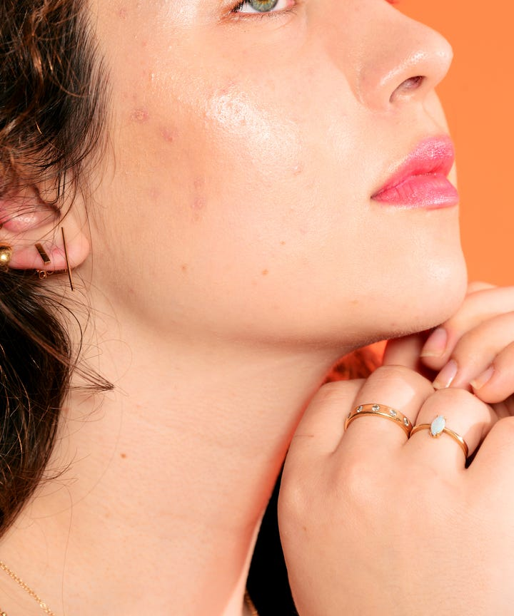 orange peel skin pores texture treatment