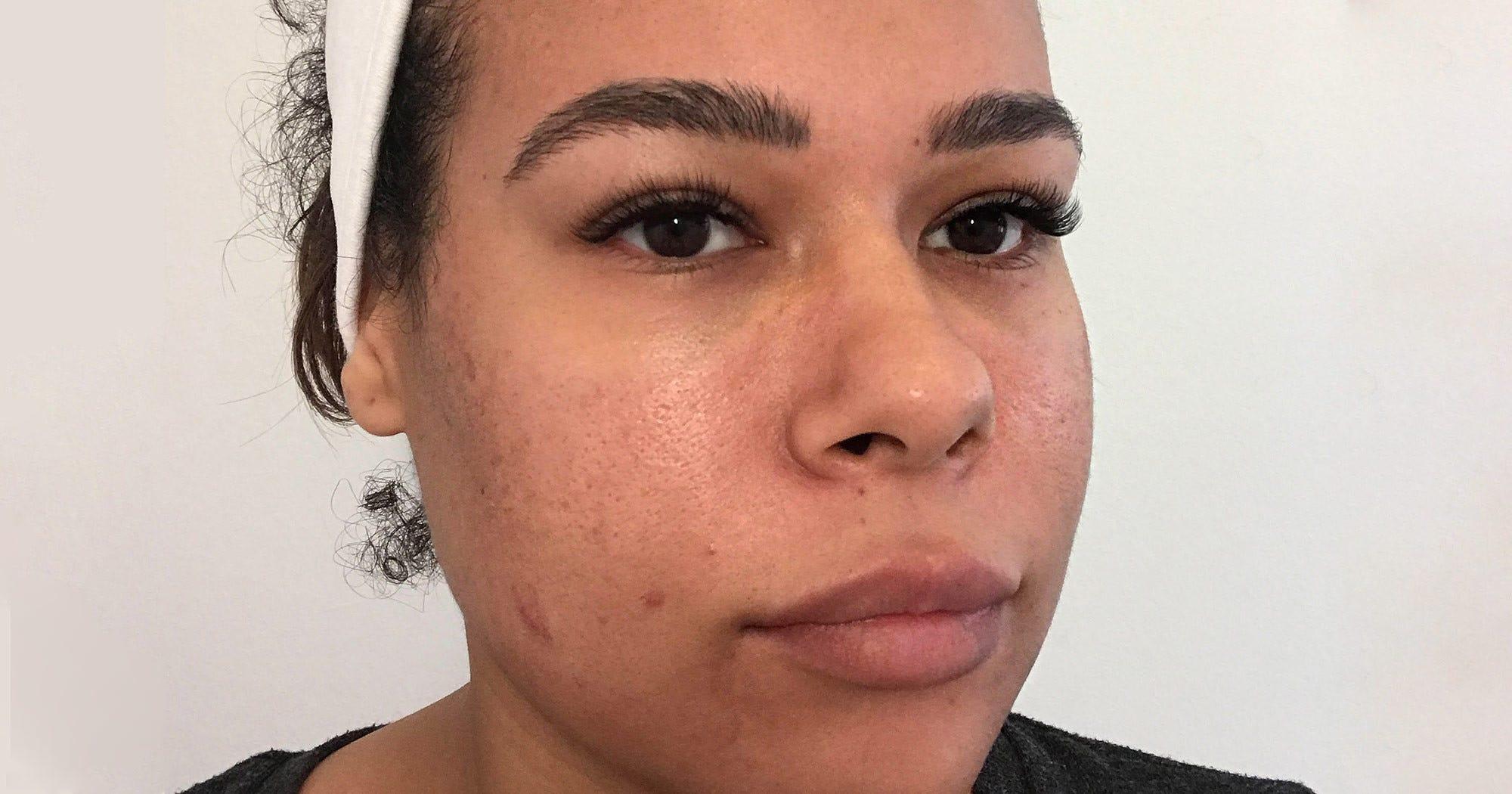 30 Tage ohne Alkohol: So veränderte sich meine Haut