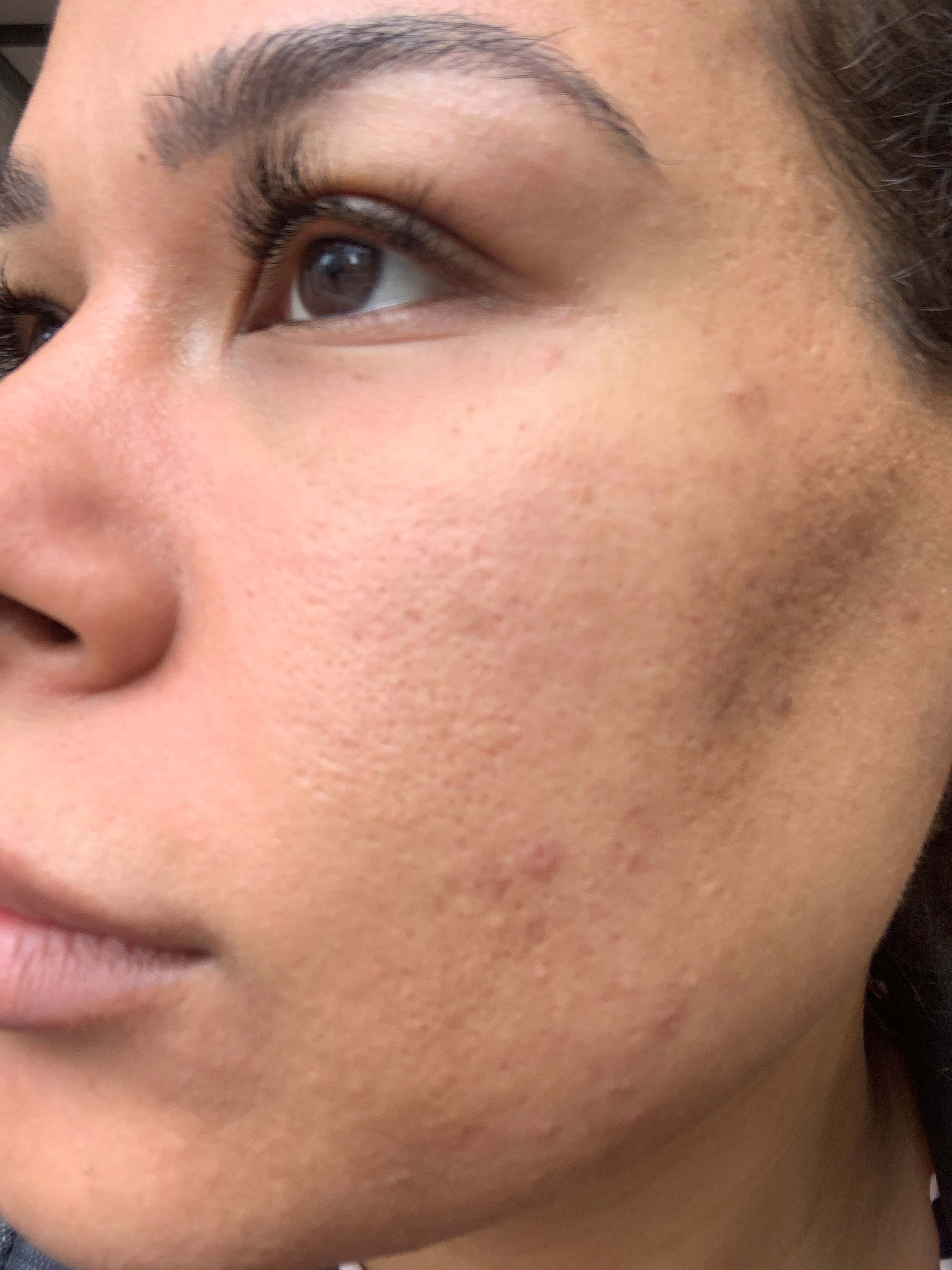 Injectable Filler For Acne Scars – Procedure & Results