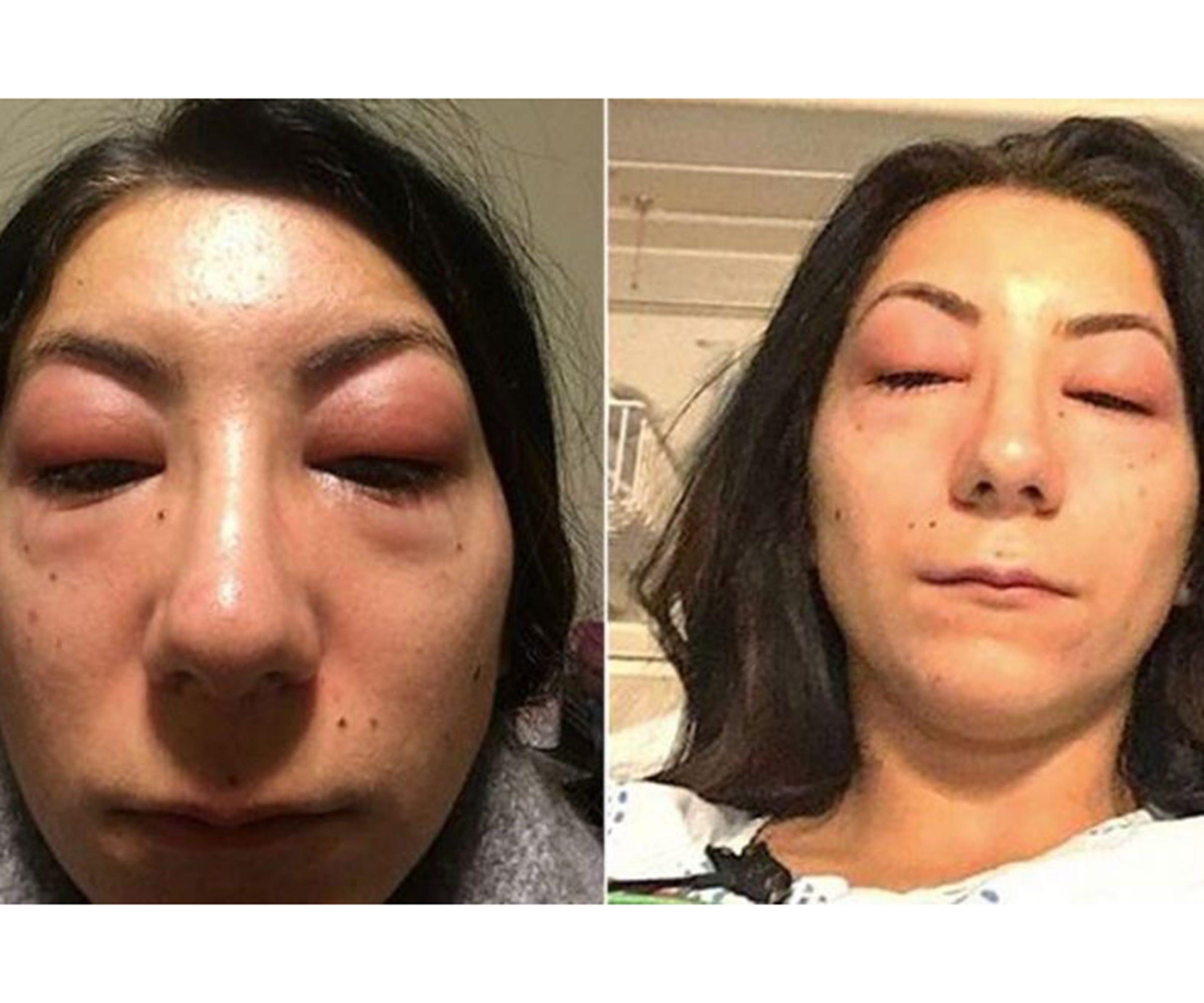 Eyelash Extensions Allergic Reaction Horror Story Photo