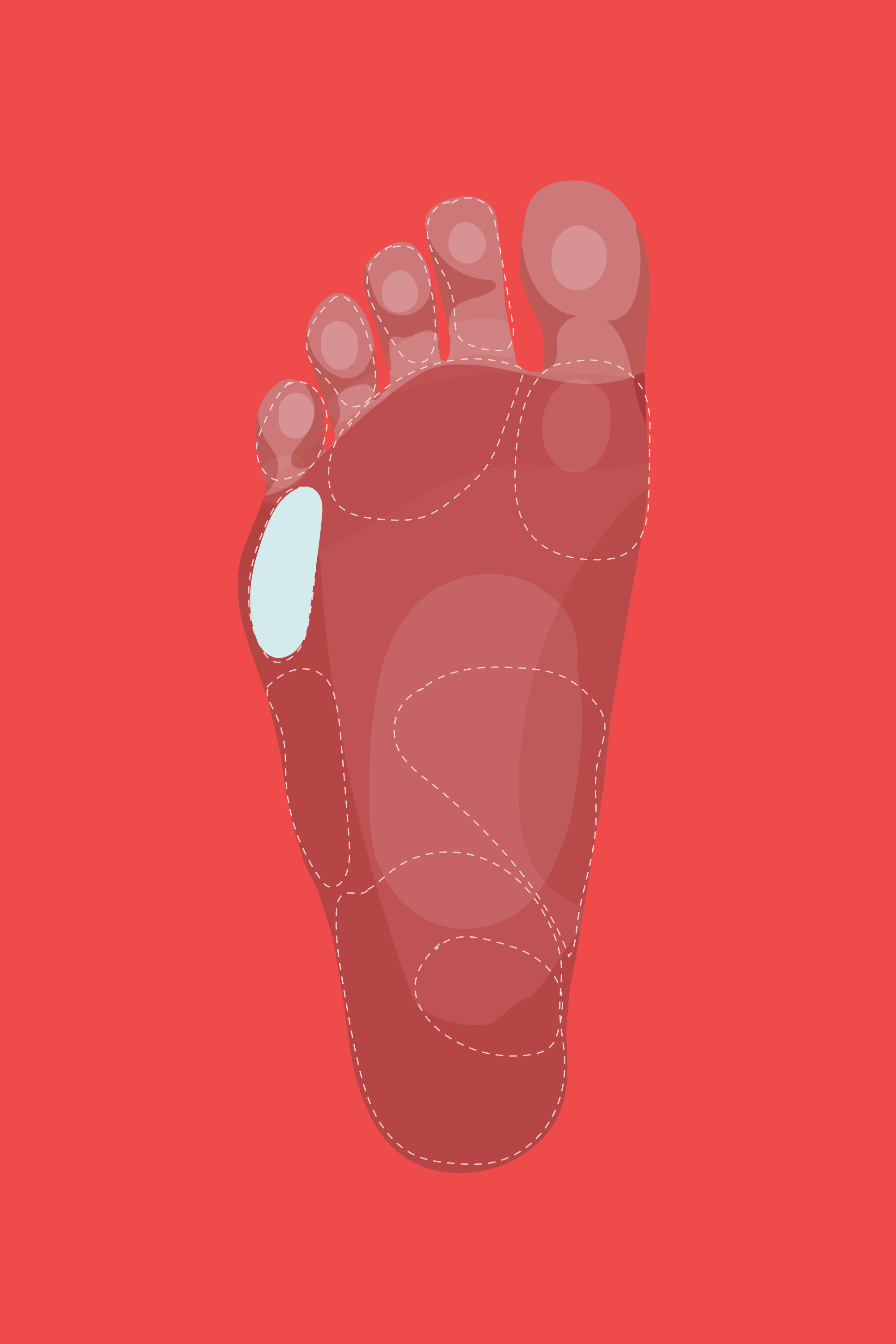 Why Do My Feet Hurt - Foot Pain Relief, Causes