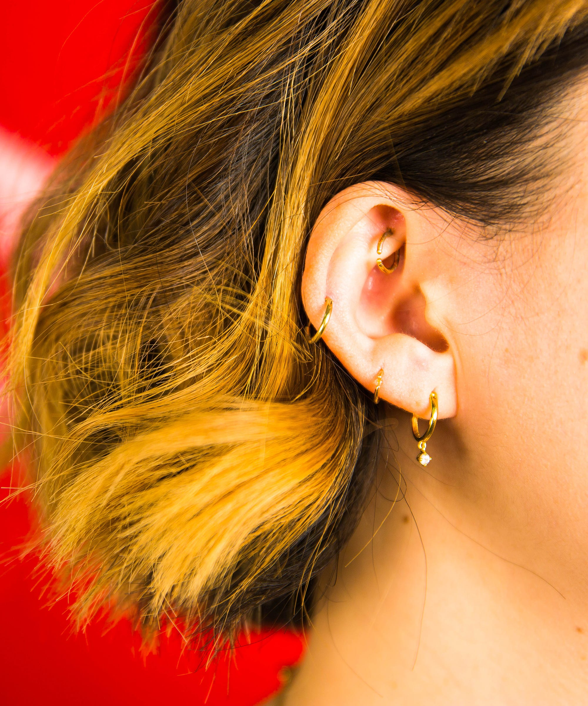 What Is A Keloid? Piercing Hypertrophic Scars Explained