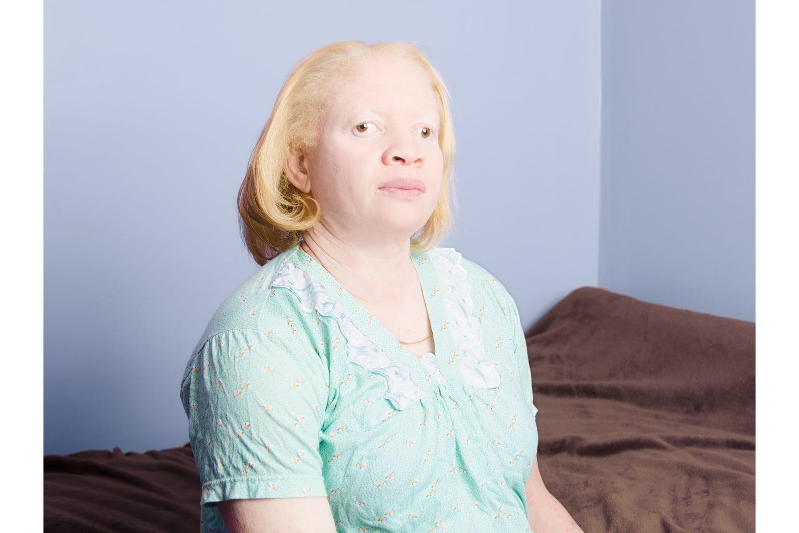 Albino Asian People