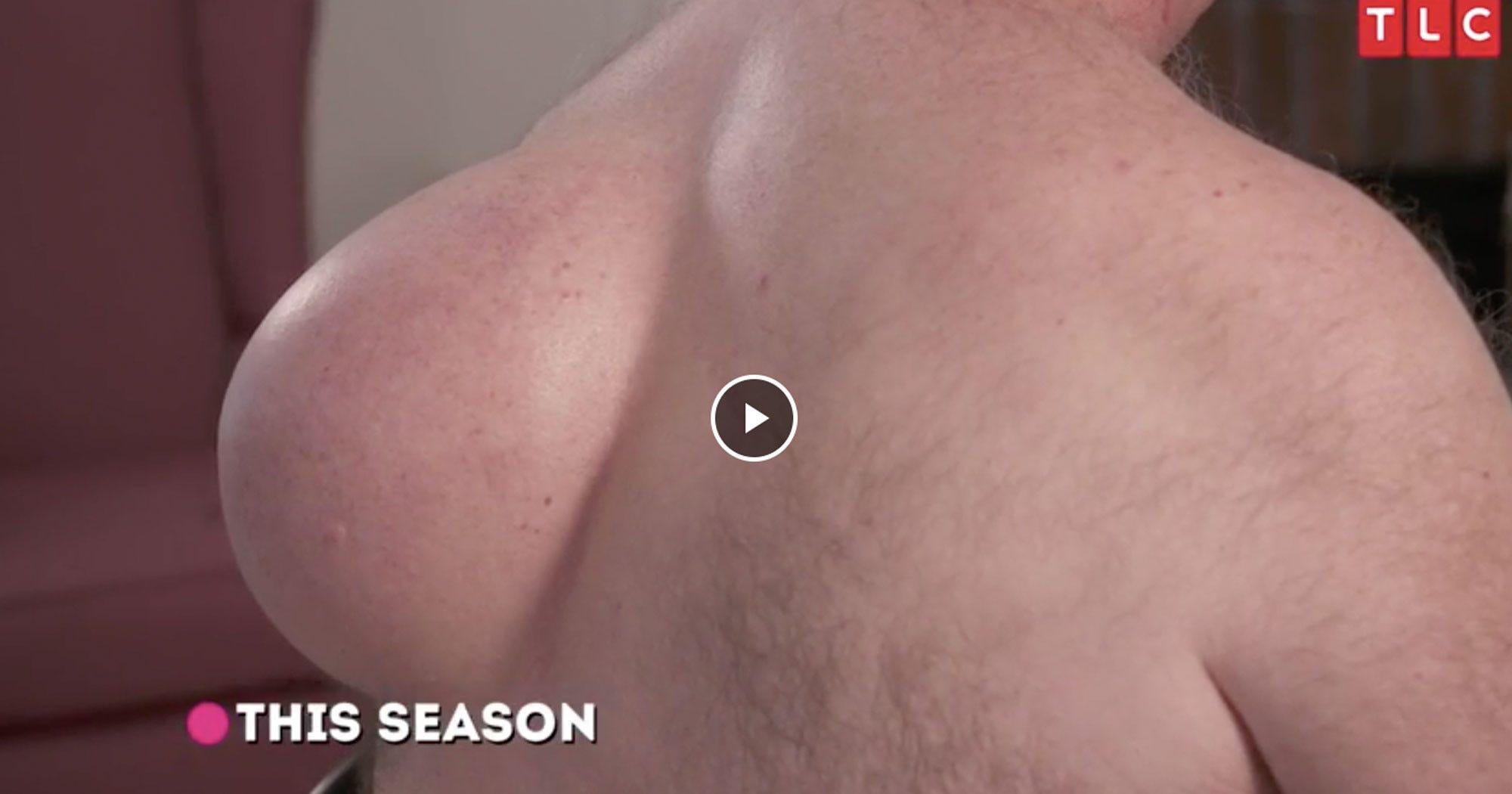 Dr Pimple Popper Season 3 Trailer Shows Crazy Surgery
