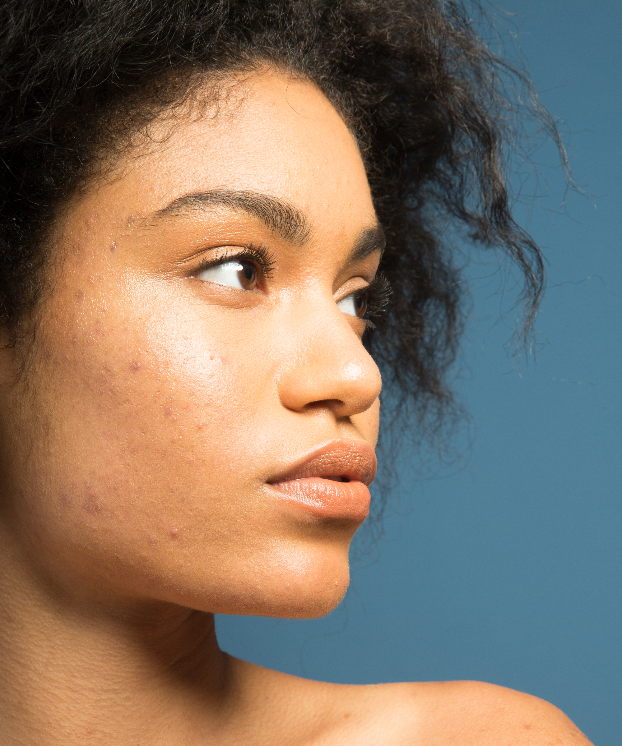 Black Skin Care Dermatologist Red Flags Need To Know