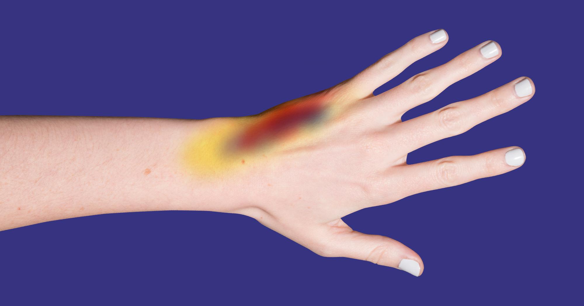 Bruising Easily - Why Do I Bruise So Easy