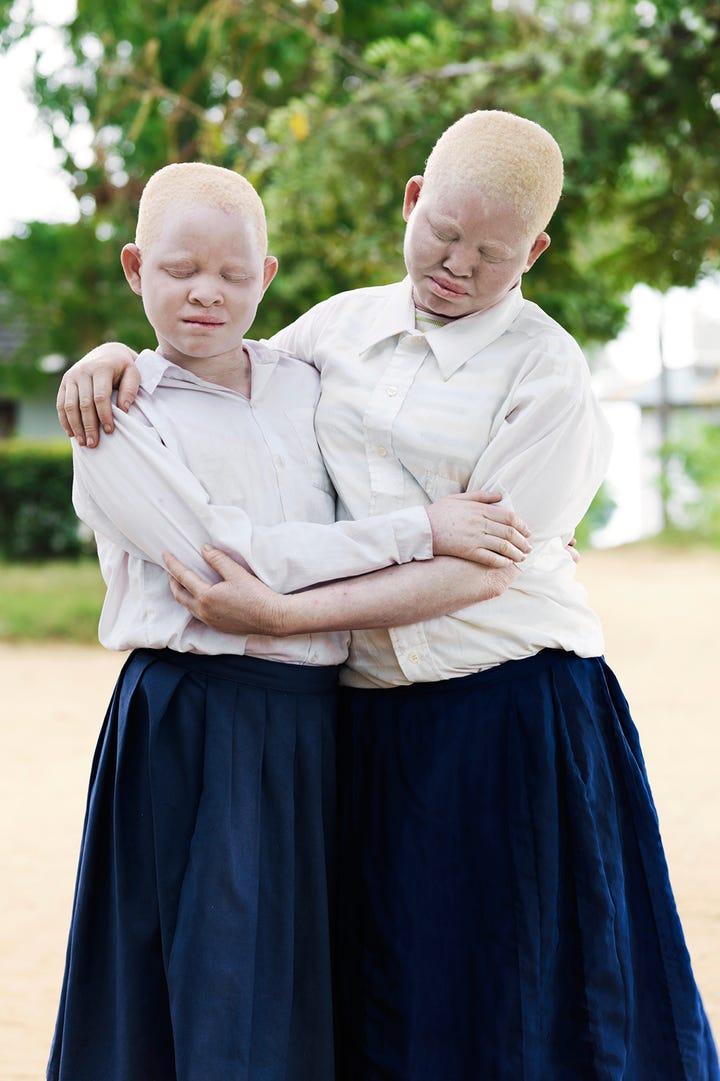 Albino Children Being Hunted Tanzania Photo Series