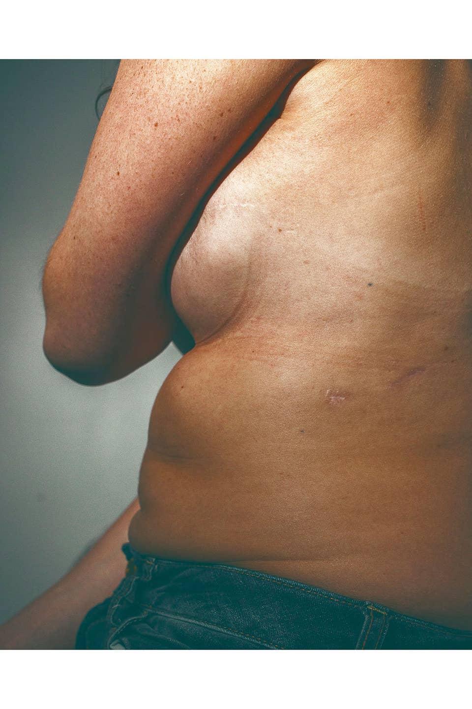 Aus wie sieht brustkrebs Wie Sieht