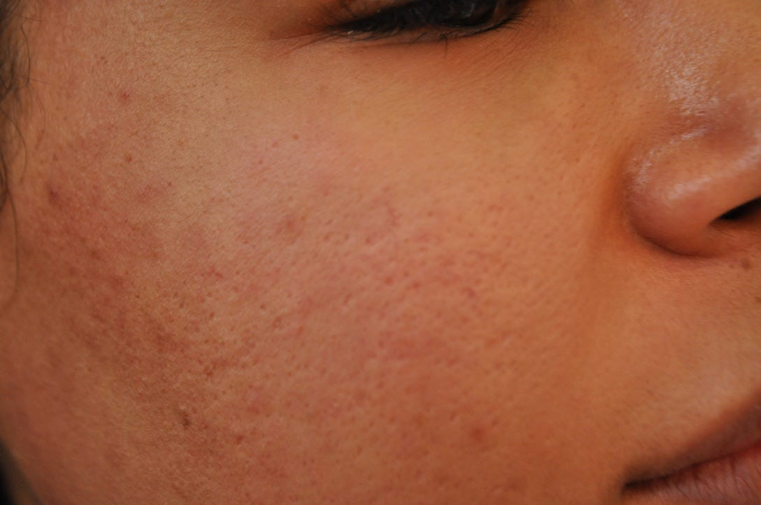 Injectable Filler For Acne Scars Before After