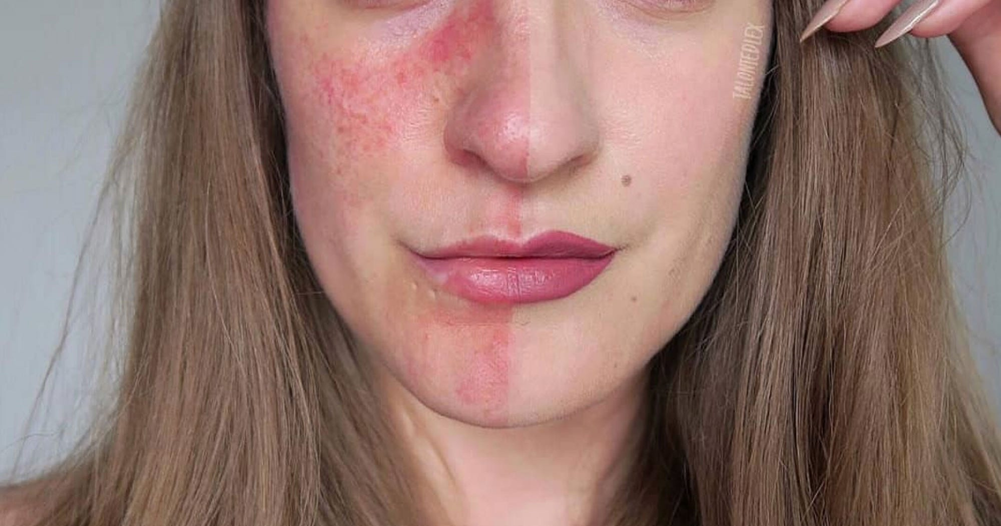 Best Makeup Products For Rosacea