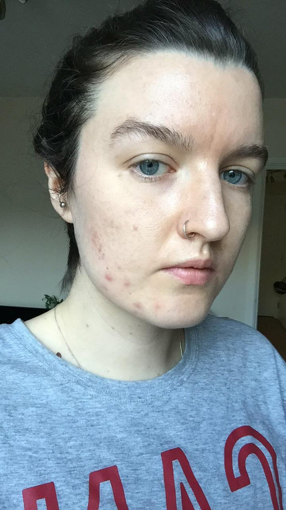 LED Light For Acne: Does It Work? Results, Side Effects